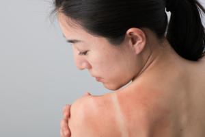 脱毛後に出る赤みの原因や対処法